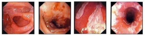 Crohn Hastalığında Endoskopi Görüntüleri