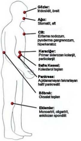 Ülseratif kolit, hastalığın form ve semptomları